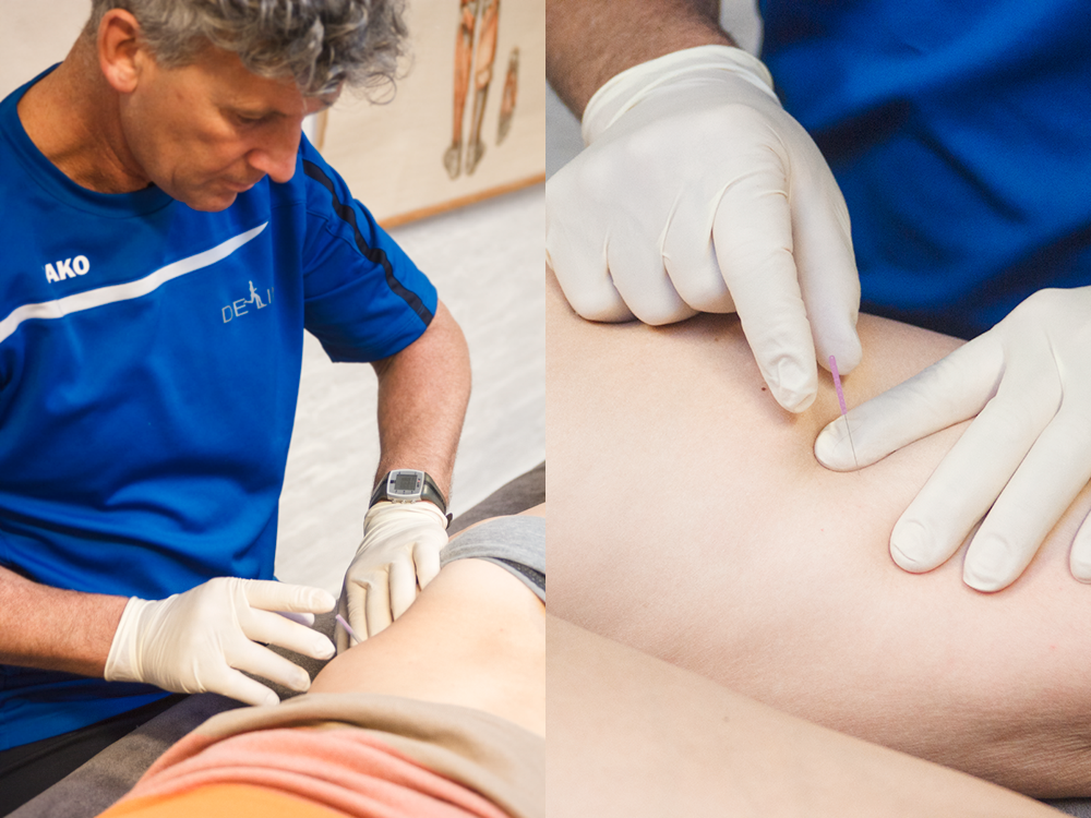 Dry Needling bij De Linie in Den Helder (Noord Holland)